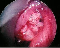 Папиллома - это опухоль из эпителиальной ткани.Папилломы часто располагаются на коже и слизистых оболочках...